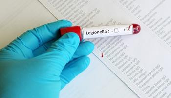 Rischio Legionellosi – linee guida